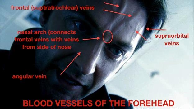 Cause Forehead Bulging Vein