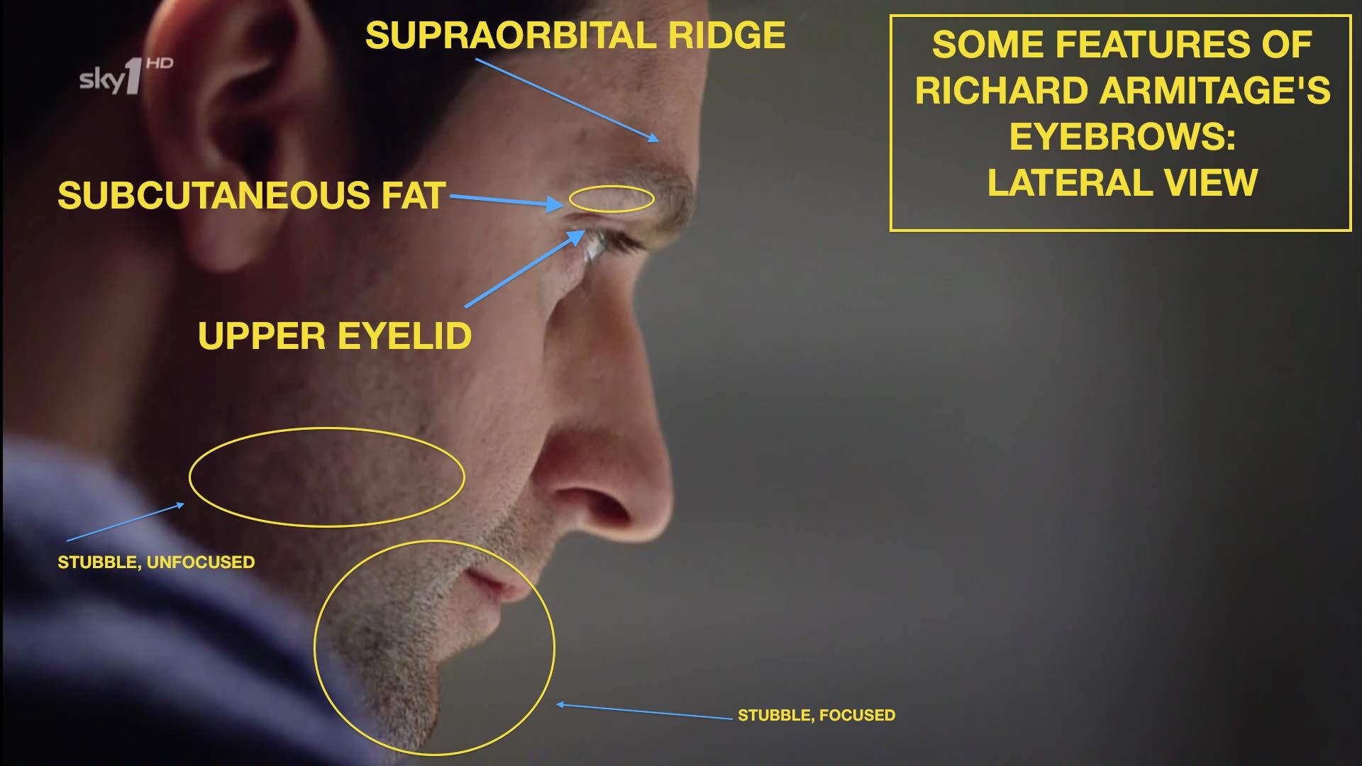 Armitage Anatomy Initial Notes On The Supraorbital Ridge Me Richard Armitage